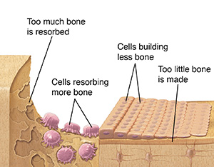 Bone with osteoporosis showing osteoblasts not making enough bone and osteoclasts resorbing too much.