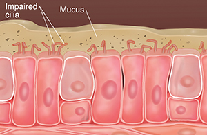 Cells with damaged cilia showing mucus buildup and particles in mucus.