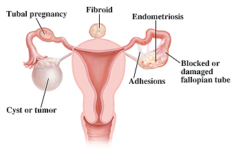 Female reproductive system showing examples fertility problems including tubal pregnancy, fibroid, endometriosis, adhesions, blocked or damaged fallopian tube, and cyst or tumor.