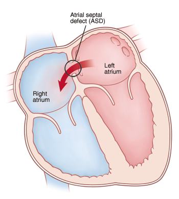 Treatment for Your Child\'s Atrial Septal Defect (ASD) - Sterling ...