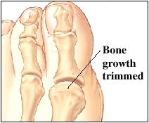 Image of big toe joint showing bone growth trimmed