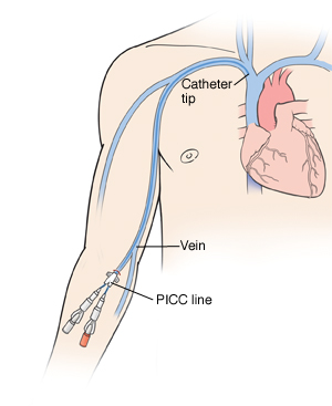 how to draw blood from a single lumen picc line