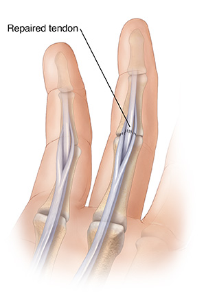 treating flexor tendon lacerations sterling care in home care