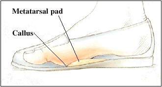 Side view of foot in shoe showing metatarsal pad and callus.