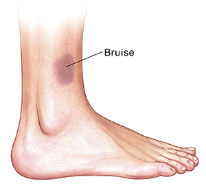 Side view of foot with bruise.