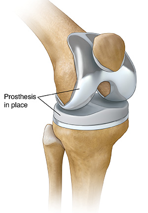 Total Knee Replacement Sterling Care In Home Care