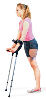 Woman with amputated leg holding crutches with tips in front of her.
