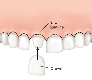 Crown being placed on shaped tooth. Dotted line shows new gumline.