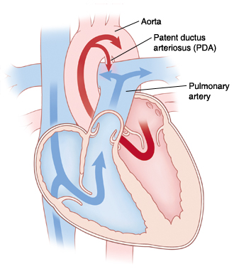 When Your Child Has A Patent Ductus Arteriosus Pda Sterling Care