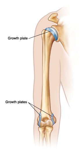 Outline-of-arm-showing-upper-arm-bone-Growth-plates-are-at-top-of ...