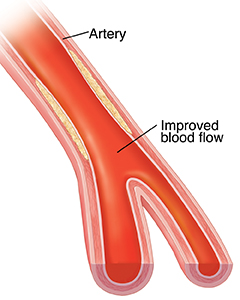 coronary angioplasty sterling care in home care westchester ny
